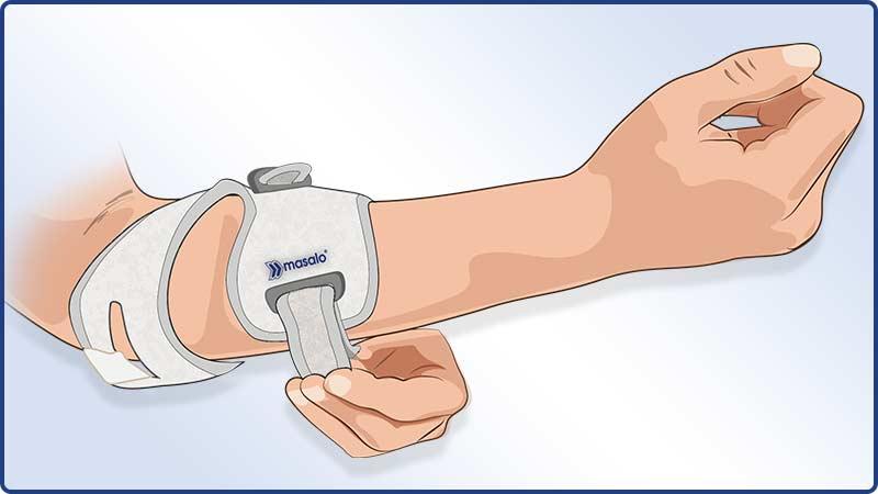 Anlegeanleitung Masalo Manschette MED - Verschließen der Unterarmmanschette